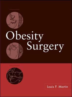 Obesity Surgery (Hardback)