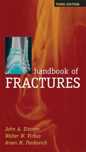 Handbook of Fractures, Third Edition (Paperback)