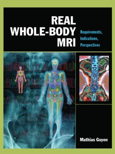 Real Whole-Body MRI: Requirements, Indications, Perspectives (Hardback)
