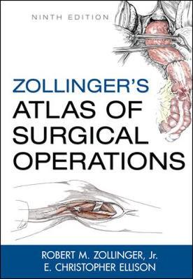 Zollinger's Atlas of Surgical Operations: Illustrations for Ninth Editions by Marita Bitans and Jennifer Smith (Hardback)