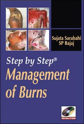 Step by Step Management of Burns (DVD video)