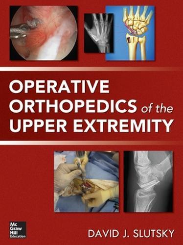 Operative Orthopedics of the Upper Extremity (Hardback)