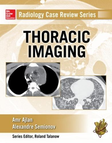Radiology Case Review Series: Thoracic Imaging (Paperback)