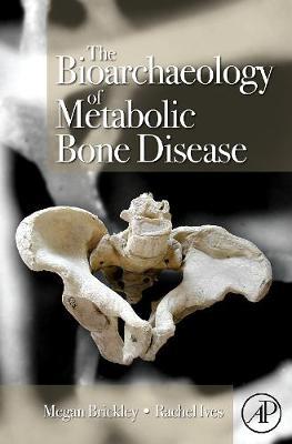 The Bioarchaeology of Metabolic Bone Disease (Hardback)
