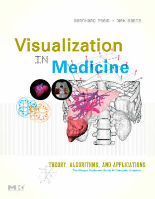 Visualization in Medicine: Theory, Algorithms, and Applications - The Morgan Kaufmann Series in Computer Graphics (Hardback)