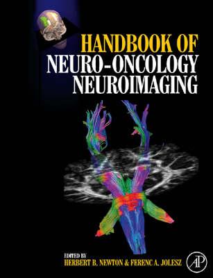 Handbook of Neuro-Oncology Neuroimaging (Hardback)