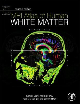 MRI Atlas of Human White Matter (Hardback)