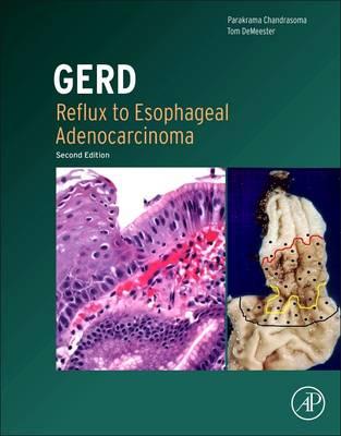 GERD: Reflux to Esophageal Adenocarcinoma (Hardback)
