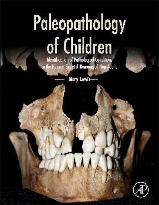 Paleopathology of Children: Identification of Pathological Conditions in the Human Skeletal Remains of Non-Adults (Hardback)