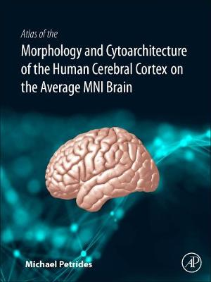 Atlas of the Morphology of the Human Cerebral Cortex on the Average MNI Brain (Hardback)