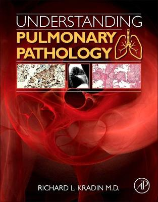 Understanding Pulmonary Pathology: Applying Pathological Findings in Therapeutic Decision Making (Paperback)