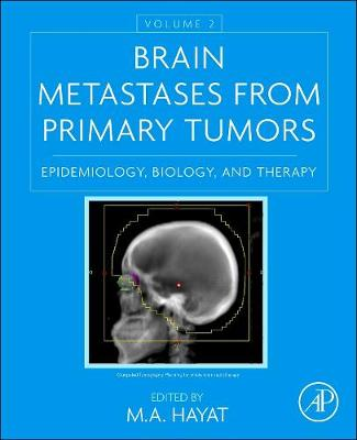 Brain Metastases from Primary Tumors, Volume 2: Epidemiology, Biology, and Therapy (Hardback)