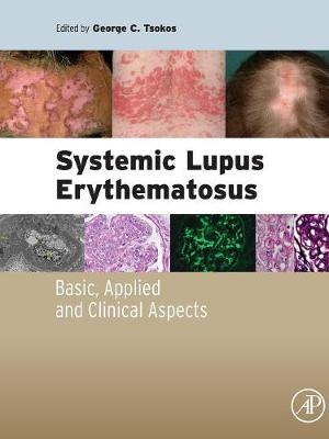 Systemic Lupus Erythematosus: Basic, Applied and Clinical Aspects (Paperback)