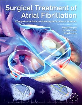 Surgical Treatment of Atrial Fibrillation: A Comprehensive Guide to Performing the Cox Maze IV Procedure (Paperback)