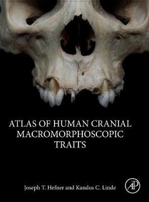 Atlas of Human Cranial Macromorphoscopic Traits (Hardback)
