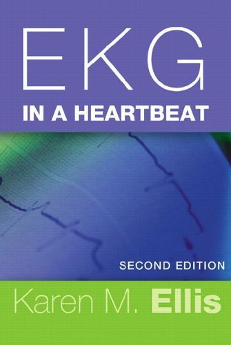 EKG in a Heartbeat (Paperback)