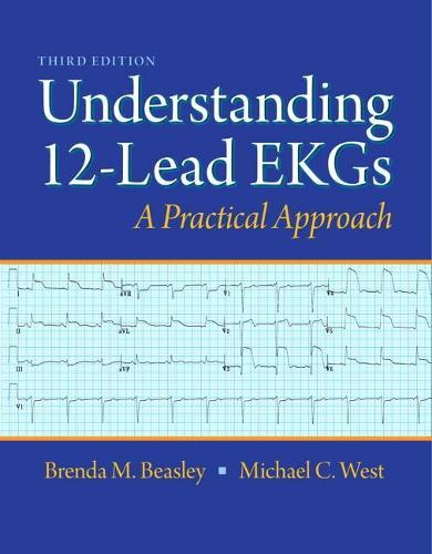 Understanding 12-lead EKGs (Paperback)