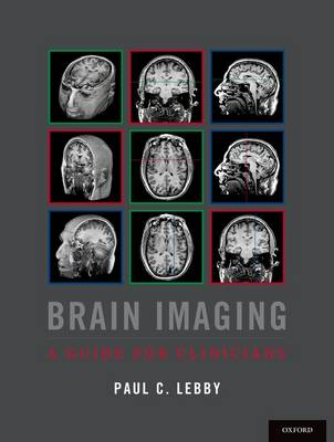 Brain Imaging: A Guide for Clinicians (Paperback)