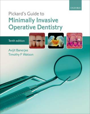 Pickard's Guide to Minimally Invasive Operative Dentistry (Paperback)
