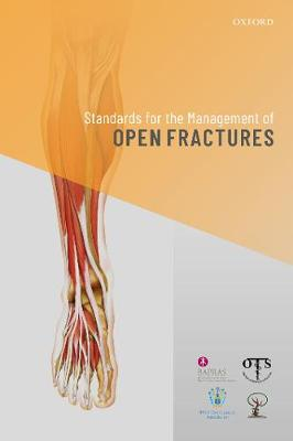 Standards for the Management of Open Fractures (Paperback)
