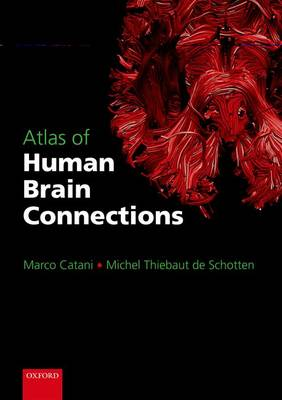 Atlas of Human Brain Connections (Hardback)