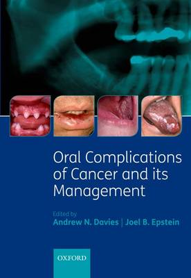 Oral Complications of Cancer and its Management (Hardback)