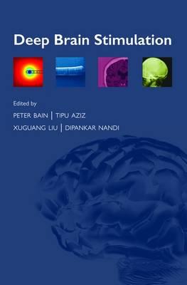 Deep Brain Stimulation (Paperback)