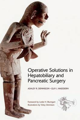 Operative Solutions in Hepatobiliary and Pancreatic Surgery (Hardback)