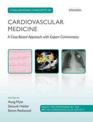 Challenging Concepts in Cardiovascular Medicine: A Case-Based Approach with Expert Commentary - Challenging Concepts (Paperback)