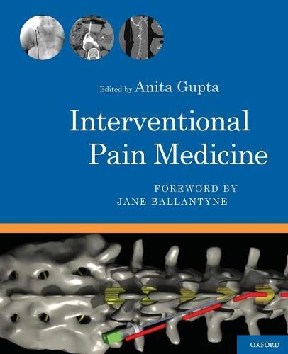 Interventional Pain Medicine (Spiral bound)