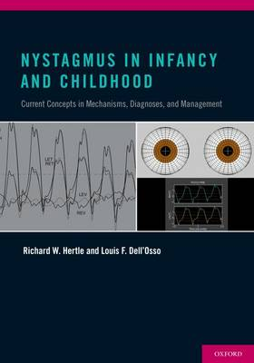 Nystagmus In Infancy and Childhood: Current Concepts in Mechanisms, Diagnoses, and Management (Hardback)