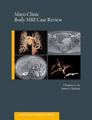Mayo Clinic Body MRI Case Review - Mayo Clinic Scientific Press (Hardback)