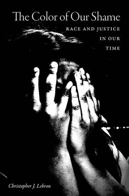 The Color of Our Shame: Race and Justice in Our Time (Hardback)