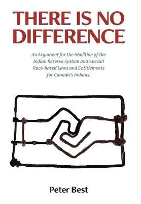 There Is No Difference: An Argument for the Abolition of the Indian Reserve System and Special Race-Based Laws and Entitlements for Canada's Indians. (Hardback)