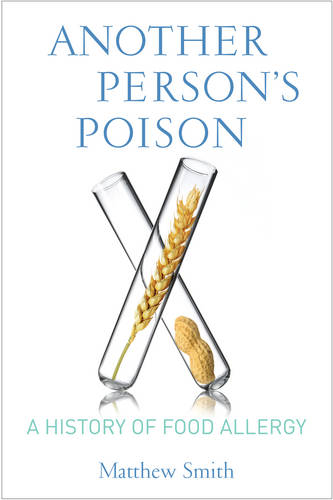 Another Person's Poison: A History of Food Allergy - Arts and Traditions of the Table: Perspectives on Culinary History (Hardback)