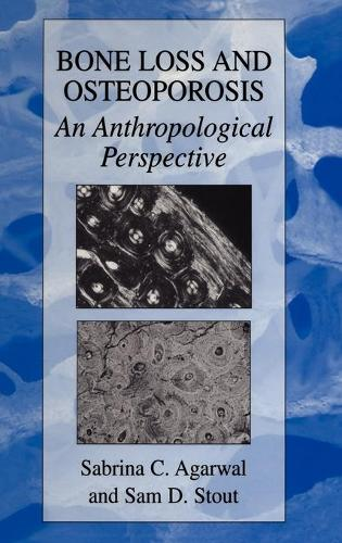 Bone Loss and Osteoporosis: An Anthropological Perspective (Hardback)