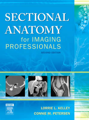 Sectional Anatomy for Imaging Professionals (Hardback)