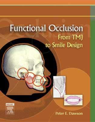 Functional Occlusion: From TMJ to Smile Design (Hardback)
