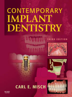 Contemporary Implant Dentistry (Hardback)