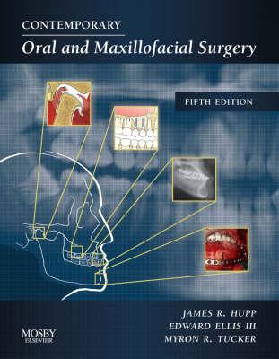 Contemporary Oral and Maxillofacial Surgery (Hardback)