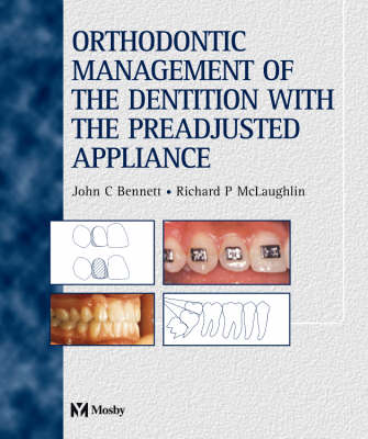 Orthodontic Management of the Dentition with the Pre-adjusted Appliance (Hardback)