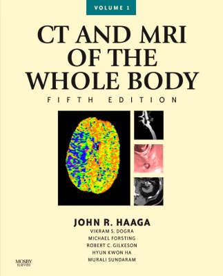 CT and MRI of the Whole Body (Hardback)