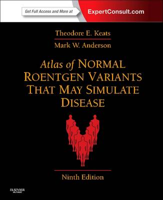 Atlas of Normal Roentgen Variants That May Simulate Disease: Expert Consult - Enhanced Online Features and Print (Hardback)