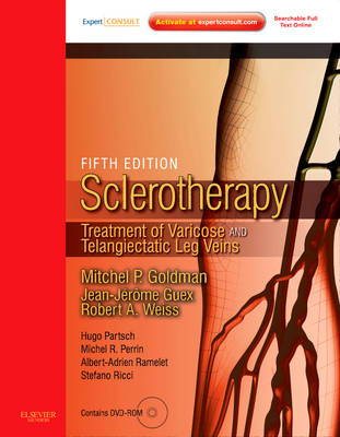 Sclerotherapy: Treatment of Varicose and Telangiectatic Leg Veins