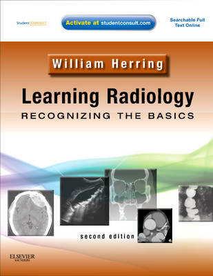 Learning Radiology: Recognizing the Basics (With STUDENT CONSULT Online Access) (Paperback)