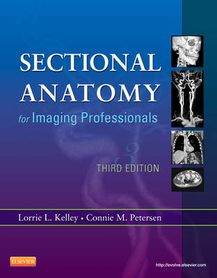 Sectional Anatomy for Imaging Professionals (Paperback)