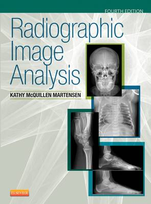 Radiographic Image Analysis (Hardback)