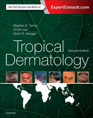 Tropical Dermatology (Hardback)