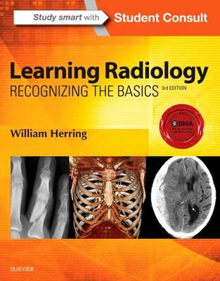 Learning Radiology: Recognizing the Basics (Paperback)