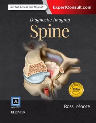 Diagnostic Imaging: Spine - Diagnostic Imaging (Hardback)